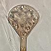 Apophysomyces thailandensis (Mucorales, ...