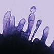 Two new endophytic Colletotrichum species ...
