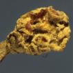 Brahmaculus gen. nov. (Leotiomycetes, ...