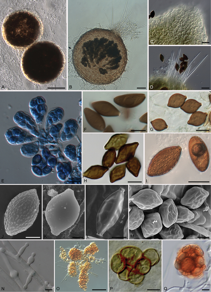 Melanospora (Sordariomycetes, Ascomycota) and its relatives